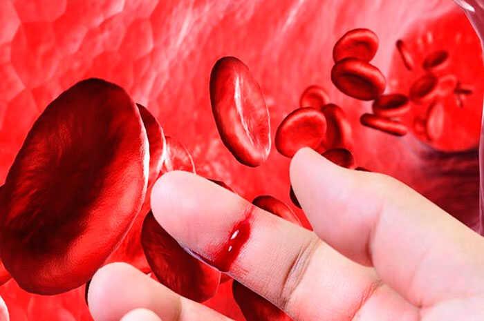 personas con hemofilia